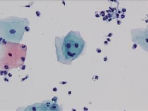 cyto-gradoutcomes2